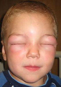 Alergia Alimentar - O que é? Quando suspeitar?