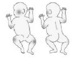 Dermatite Atópica em Bebês: áreas de acometimento