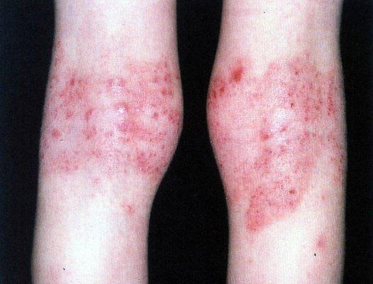 Eczema em área de dobra