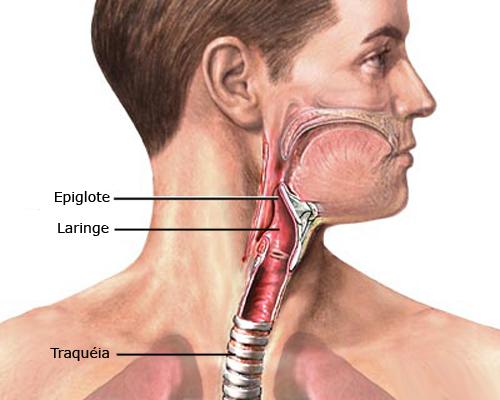 laringite1
